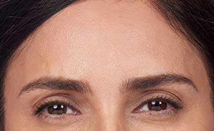 BOTOX---After---1